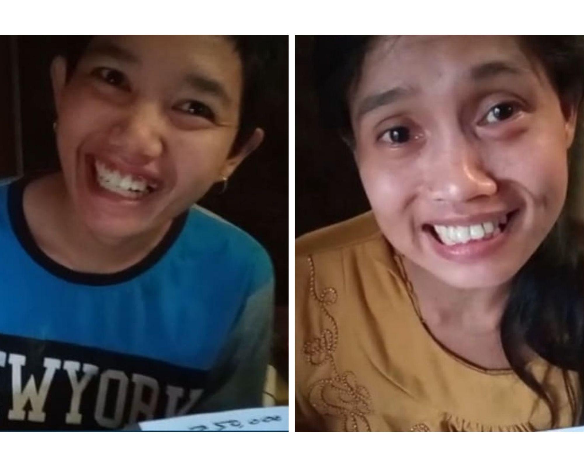 Kakak beradik di Malang yang dikabarkan terkena stroke usai melahirkan. (Foto: Instagram/vivipdharapan)