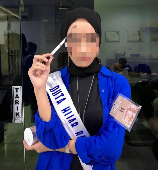 Salah satu korban fetish di Kota Malang. (Foto: Dokumen/Tugu Jatim)