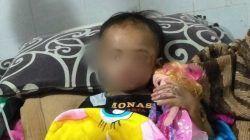 Balita asal Desa Beji, Kecamatan Junrejo, Kota Batu, ini jadi korban penganiayaan calon ayah tiri.(Foto: Dokumen/Tugu Jatim)